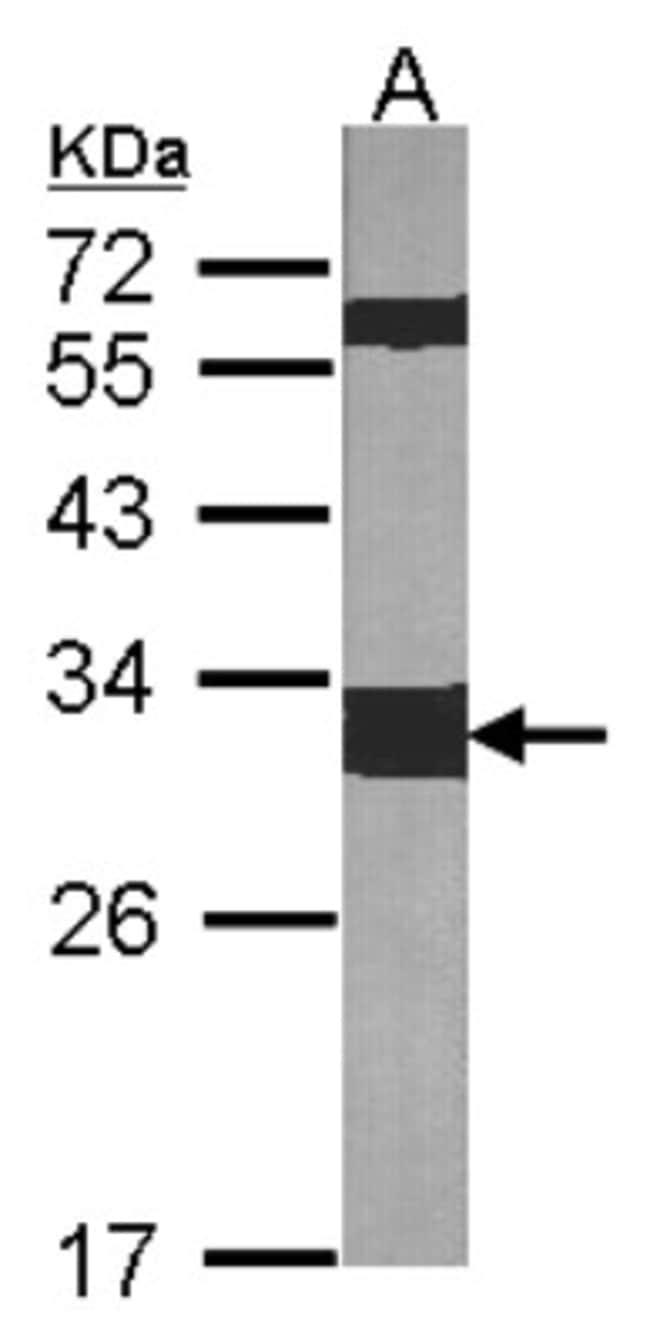 anti-14-3-3 zeta, Polyclonal, Novus Biologicals 0.1mL; Unlabeled:Life Sciences