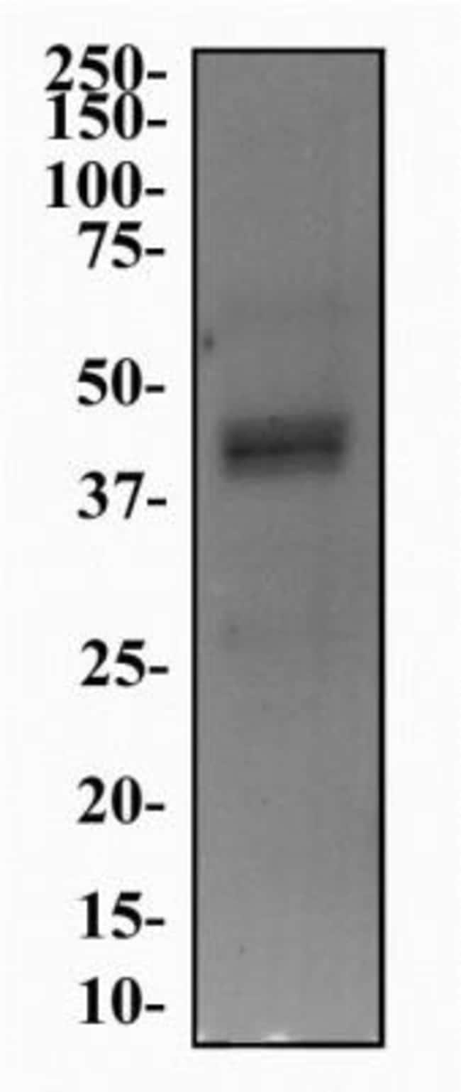 anti-5-HT4, Polyclonal, Novus Biologicals 0.025mL; Unlabeled:Life Sciences