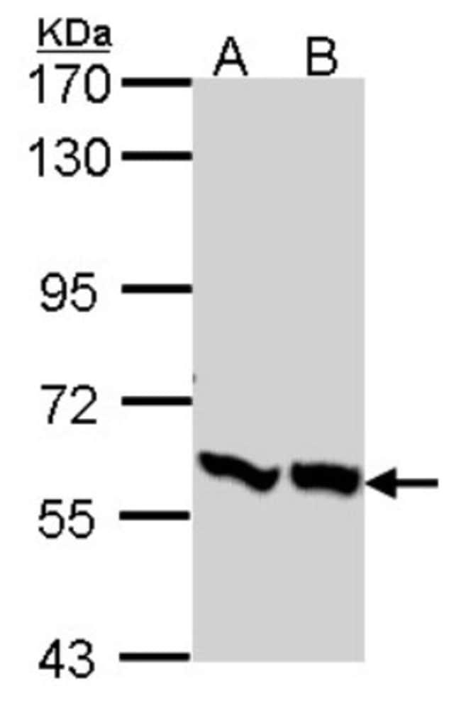 anti-6 Phosphofructo 2 Kinase, Polyclonal, Novus Biologicals 0.1mL; Unlabeled:Antibodies