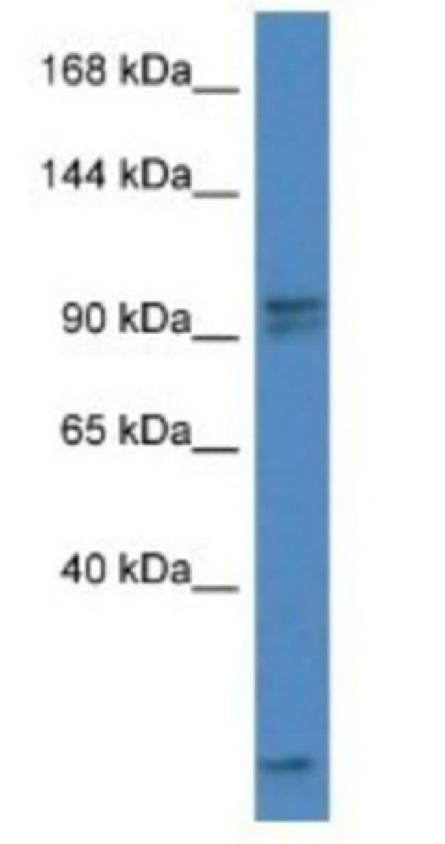 AAK1 Rabbit anti-Mouse, Polyclonal, Novus Biologicals 100µL; Unlabeled:Life
