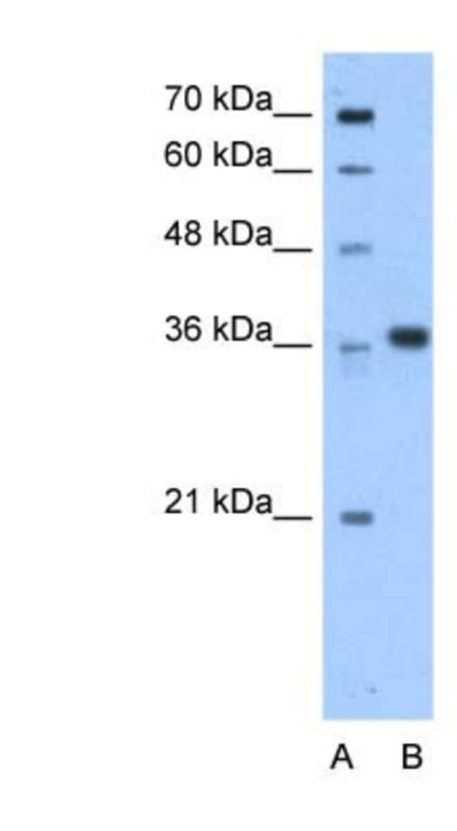 AASD-PPT Rabbit anti-Human, Polyclonal, Novus Biologicals 20µL; Unlabeled