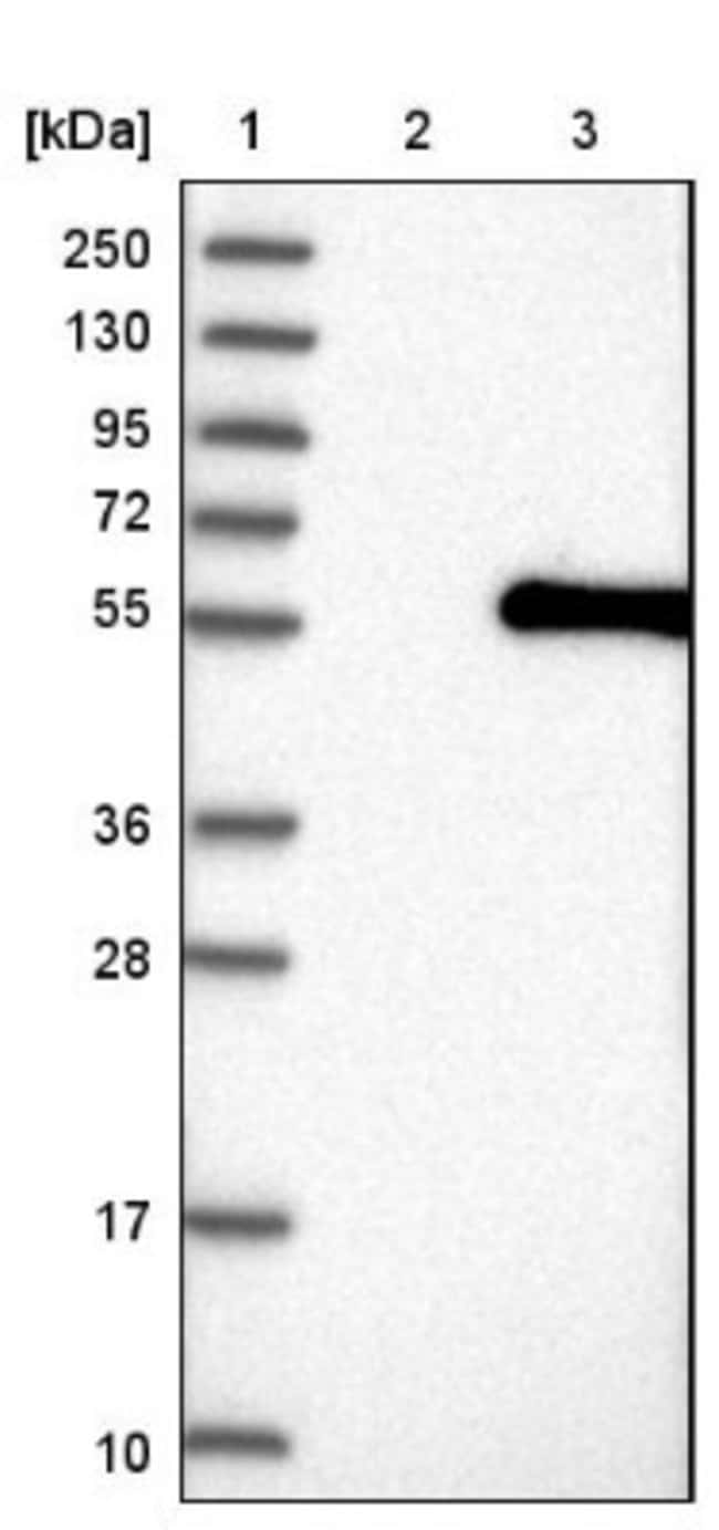 anti-ABHD8, Polyclonal, Novus Biologicals 0.1mL; Unlabeled:Life Sciences