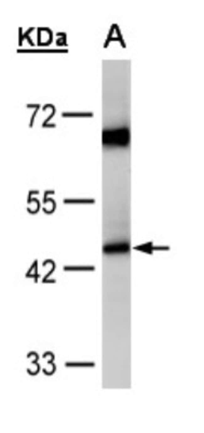 anti-ACADM, Polyclonal, Novus Biologicals 0.1mg; Unlabeled:Life Sciences