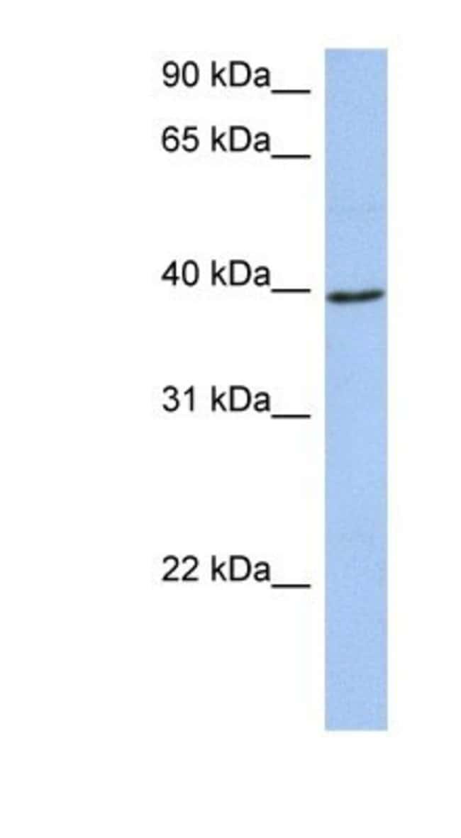ACADM Rabbit anti-Human, Polyclonal, Novus Biologicals 100µL; Unlabeled:Life