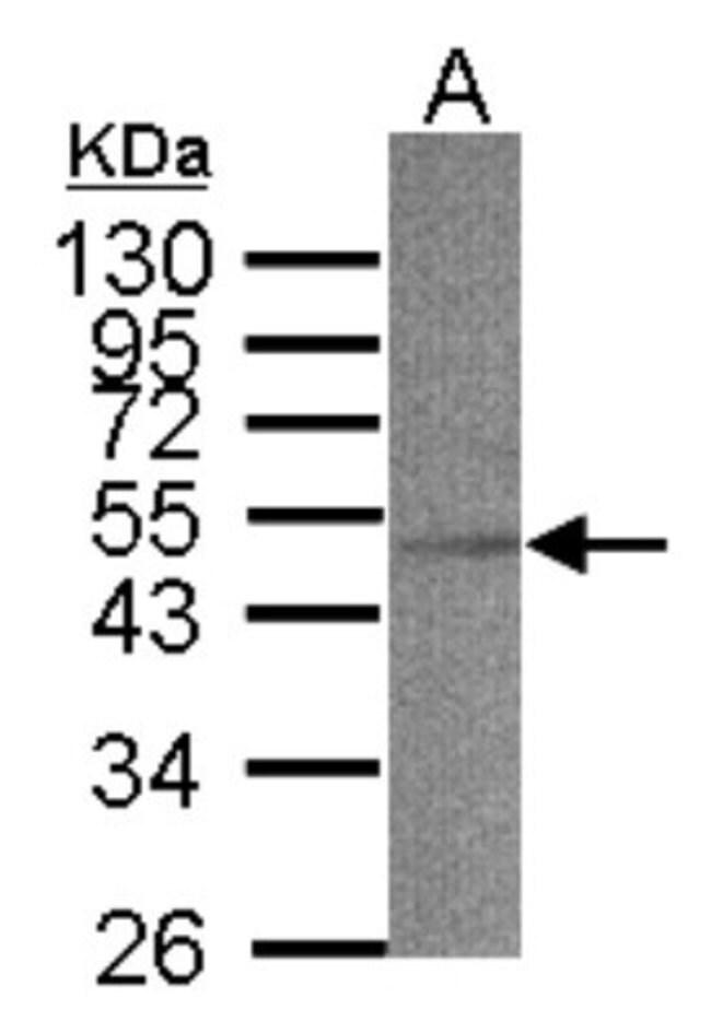 anti-ACADS, Polyclonal, Novus Biologicals 0.1mg; Unlabeled:Life Sciences