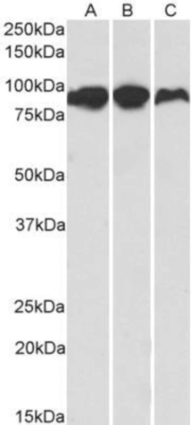 anti-Aconitase 2, Polyclonal, Novus Biologicals 0.1mg; Unlabeled:Life Sciences