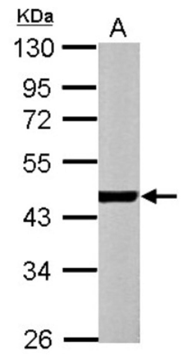 anti-Actin Alpha 1 Cardiac Muscle, Polyclonal, Novus Biologicals 0.1mL;