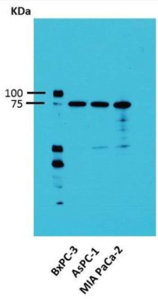 anti-Activin RIA/ALK-2/Activin Receptor Type 1, Polyclonal, Novus Biologicals