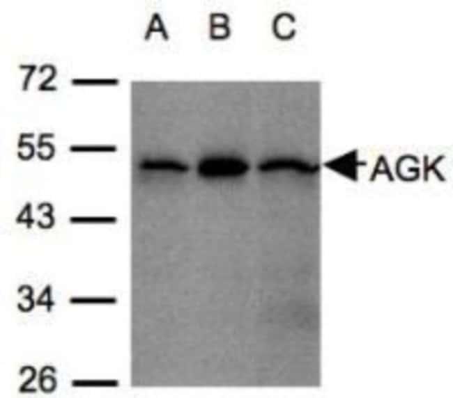 anti-Acylglycerol Kinase, Polyclonal, Novus Biologicals 0.1mL; Unlabeled:Life