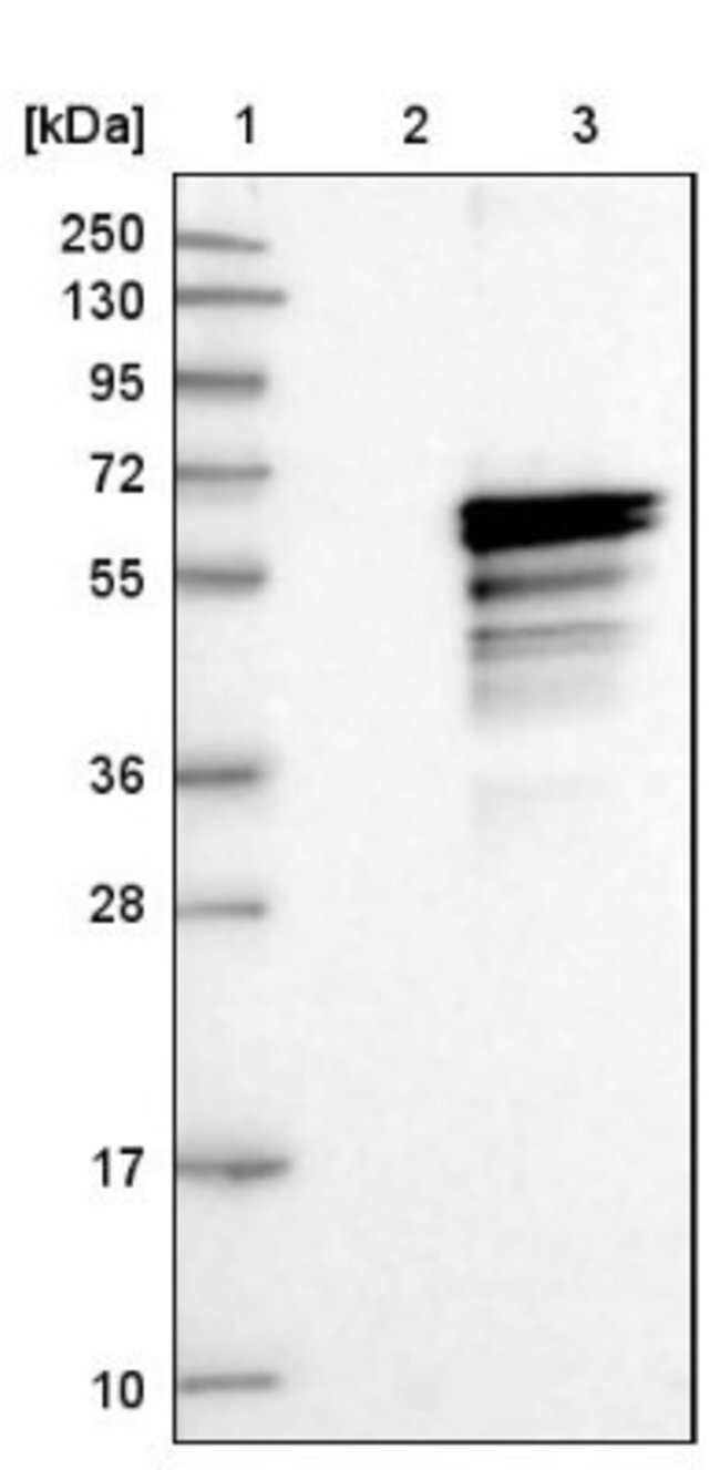anti-ADCK4, Polyclonal, Novus Biologicals 0.1mL; Unlabeled:Life Sciences