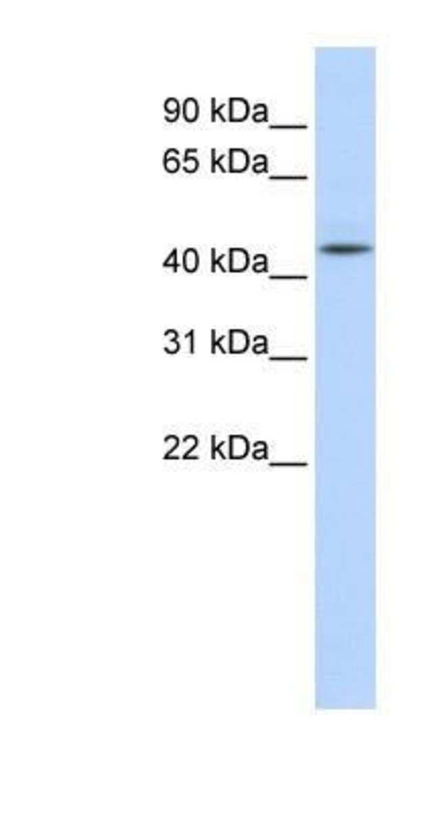 Adenosylhomocysteinase/AHCY Rabbit anti-Human, Mouse, Rat, Porcine, Bovine,