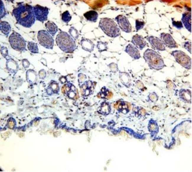 anti-Adiponutrin/PNPLA3, Polyclonal, Novus Biologicals 0.1mg; Unlabeled:Life