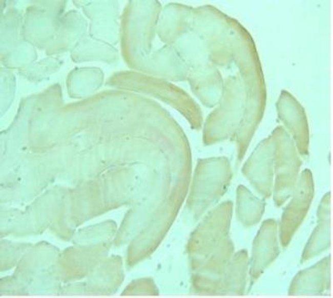anti-AdipoR1, Polyclonal, Novus Biologicals 0.1mg; Unlabeled:Life Sciences