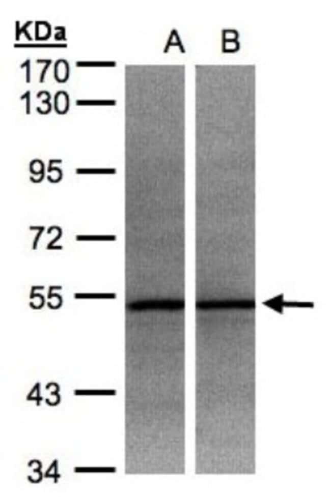 anti-ADPGK, Polyclonal, Novus Biologicals 0.1mL; Unlabeled:Antibodies