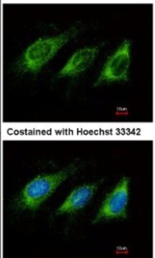 anti-AICDA, Polyclonal, Novus Biologicals 0.1mg; Unlabeled:Life Sciences
