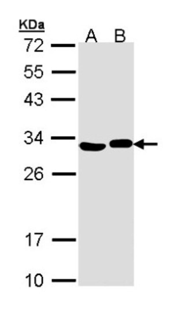 anti-AK2, Polyclonal, Novus Biologicals 0.1mg; Unlabeled:Life Sciences