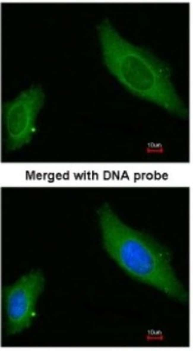 anti-AKAP12, Polyclonal, Novus Biologicals 0.1mL; Unlabeled:Antibodies