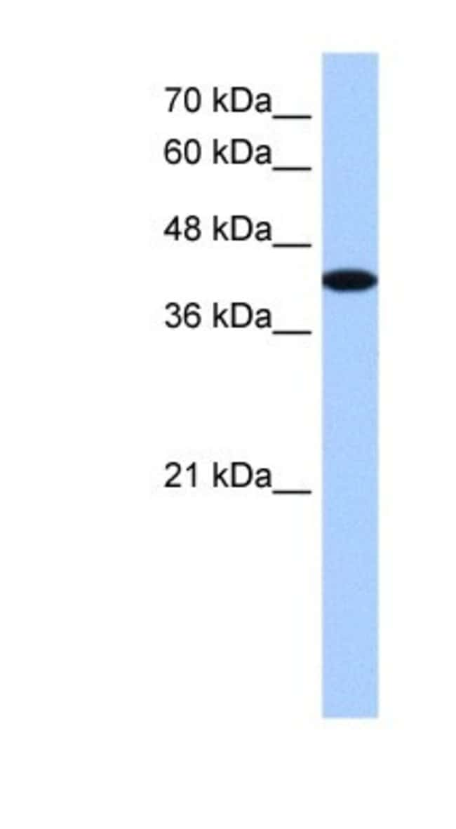 AKAP7 Rabbit anti-Human, Polyclonal, Novus Biologicals 20µL; Unlabeled