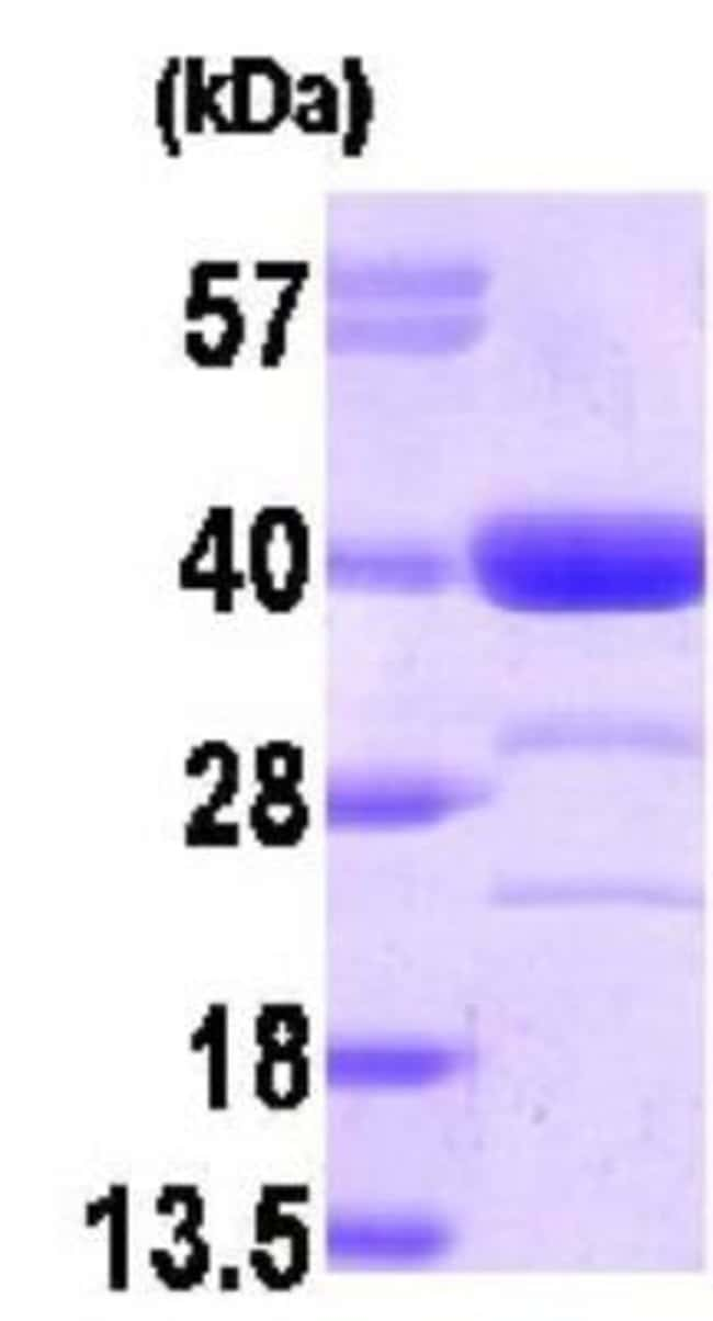 Novus Biologicals AKR1A1 Recombinant Protein 0.1mg:Life Sciences