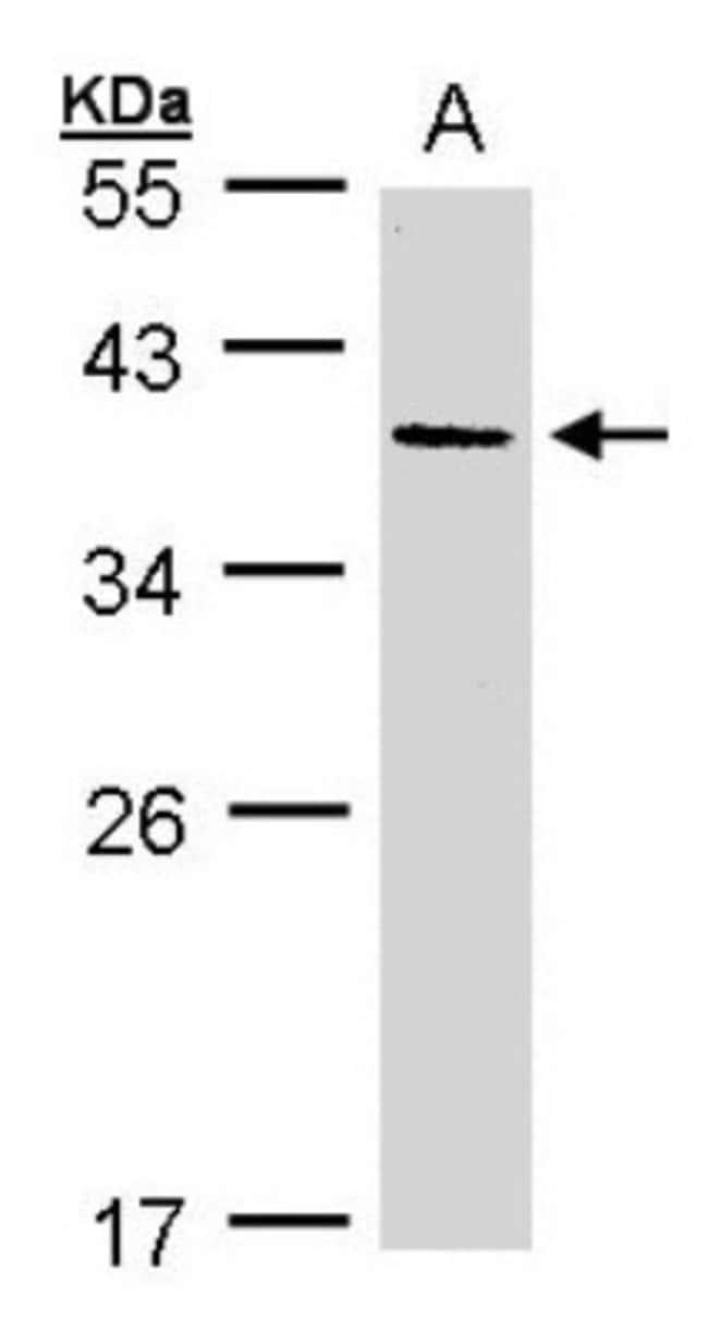 anti-AKR7A3, Polyclonal, Novus Biologicals 0.1mg; Unlabeled:Life Sciences