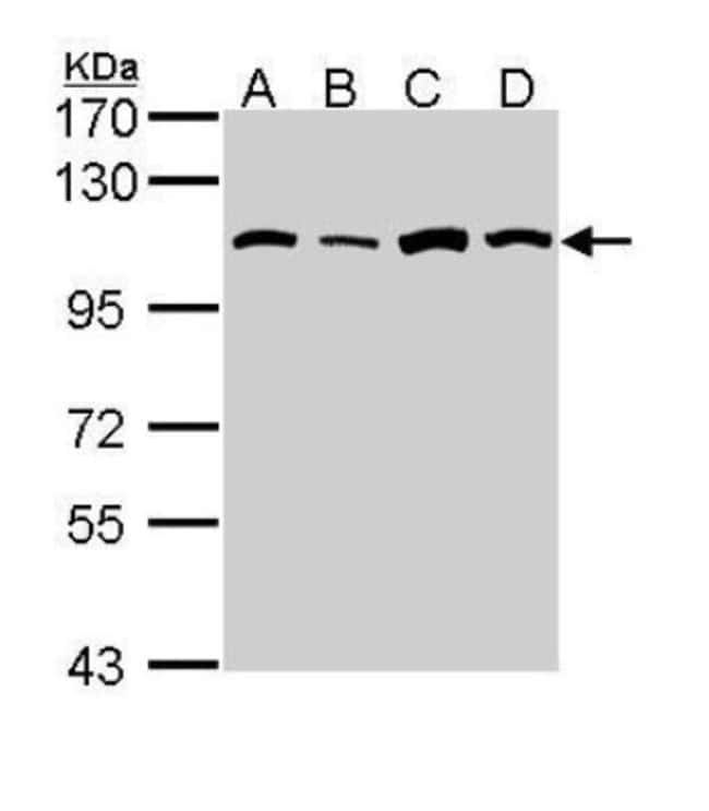anti-Alanyl tRNA synthetase, Polyclonal, Novus Biologicals 0.1mL; Unlabeled:Antibodies