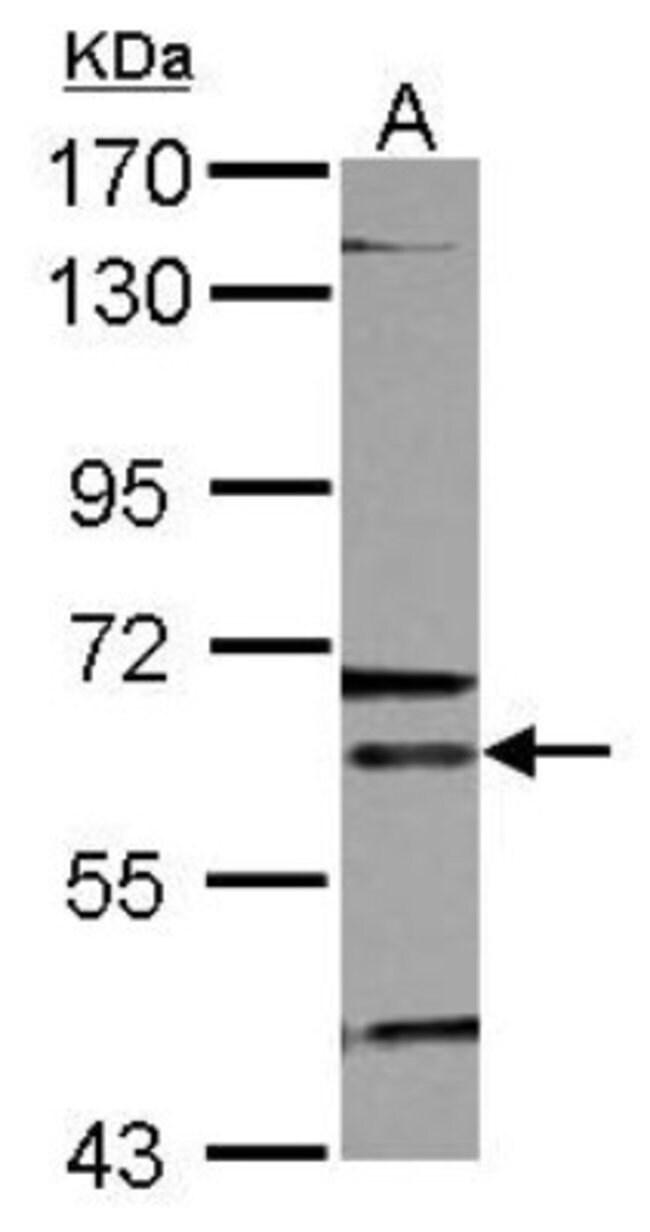 anti-ALAS2, Polyclonal, Novus Biologicals 0.1mg; Unlabeled:Life Sciences