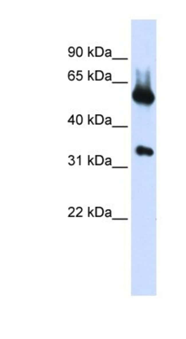 ALAS2 Rabbit anti-Human, Polyclonal, Novus Biologicals 20µL; Unlabeled