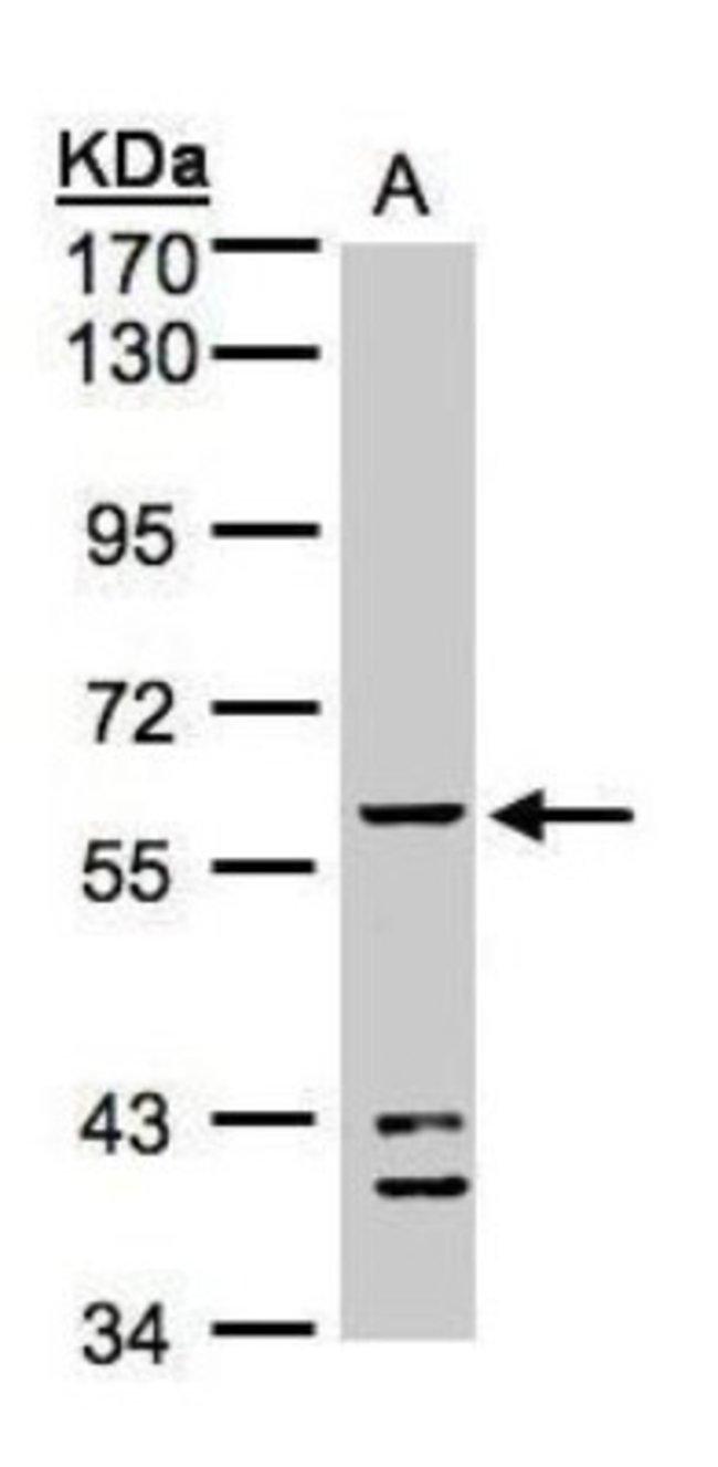 anti-Aldehyde dehydrogenase 5, Polyclonal, Novus Biologicals 0.1mL; Unlabeled:Life