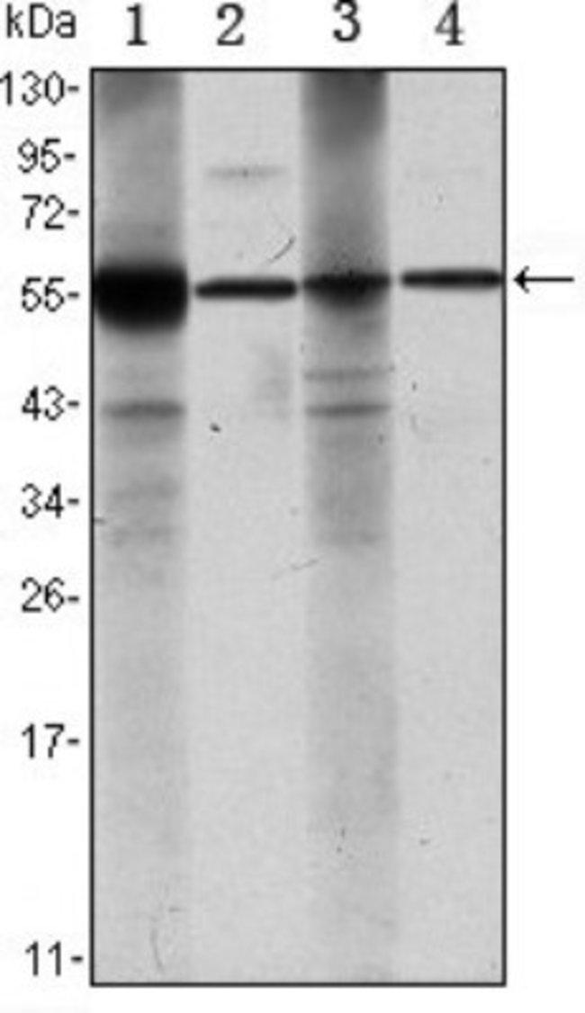 anti-Aldehyde Dehydrogenase 1-A1/ALDH1A1, Clone: 5A11, Novus Biologicals