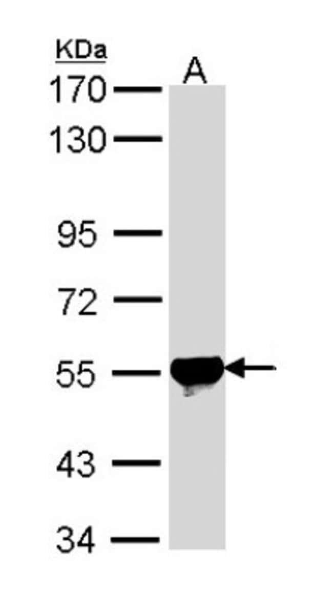 anti-ALDH2, Polyclonal, Novus Biologicals 0.1mg; Unlabeled:Antibodies