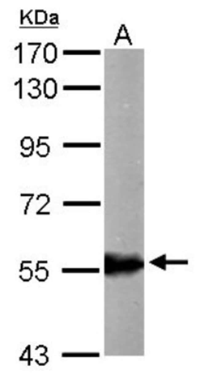 anti-ALDH6A1, Polyclonal, Novus Biologicals 0.1mg; Unlabeled:Life Sciences