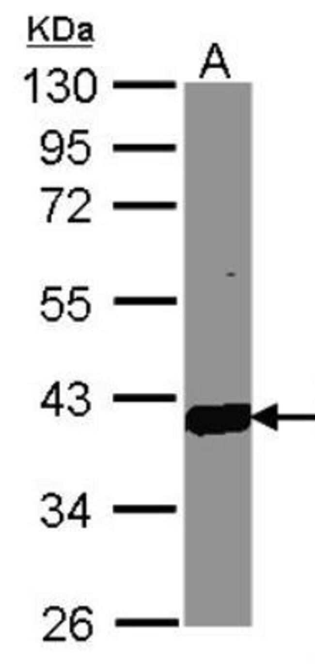 anti-Aldo-keto Reductase 1C3/AKR1C3, Polyclonal, Novus Biologicals 0.1mg;