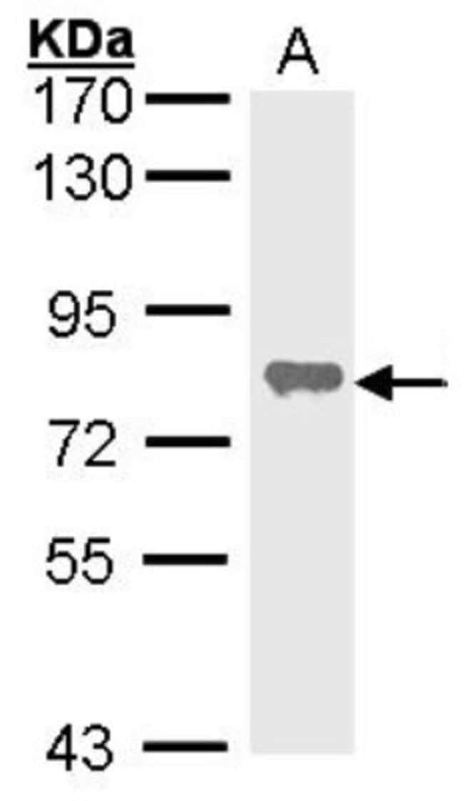 anti-Alkaline Phosphatase, Tissue Non-Specific, Polyclonal, Novus Biologicals