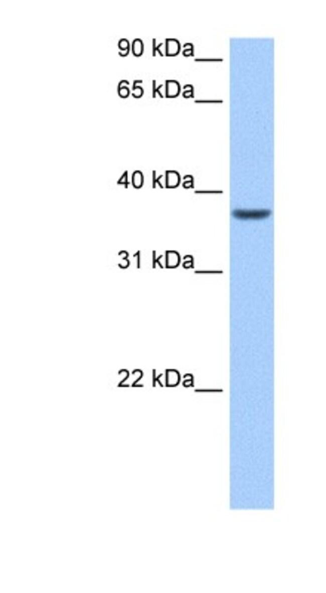ALKBH8 Rabbit anti-Human, Polyclonal, Novus Biologicals 20µL; Unlabeled