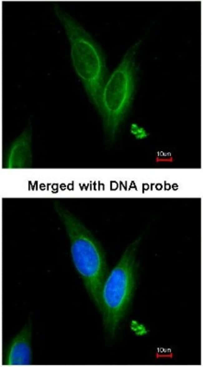anti-alpha Tubulin 4a, Polyclonal, Novus Biologicals 0.1mL; Unlabeled:Life