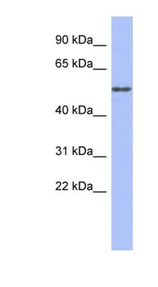 alpha Tubulin 4a Rabbit anti-Human, Polyclonal, Novus Biologicals 20µL;