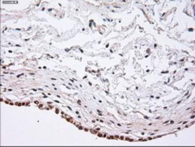 anti-alpha-Actinin 1, Clone: 7A4, Novus Biologicals 0.1mL; Unlabeled:Life