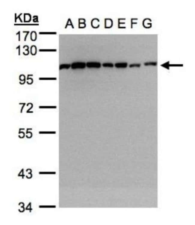 anti-alpha-Actinin 1, Polyclonal, Novus Biologicals 0.1mL; Unlabeled:Life