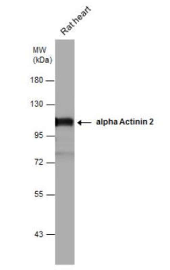 Alpha Actinin 2 Rabbit anti-Human, Mouse, Rat, Porcine, Polyclonal, Novus