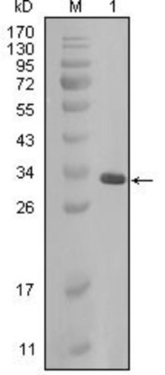anti-AlphaB Crystallin/CRYAB, Clone: 1D11C6E6, Novus Biologicals 0.1mL;