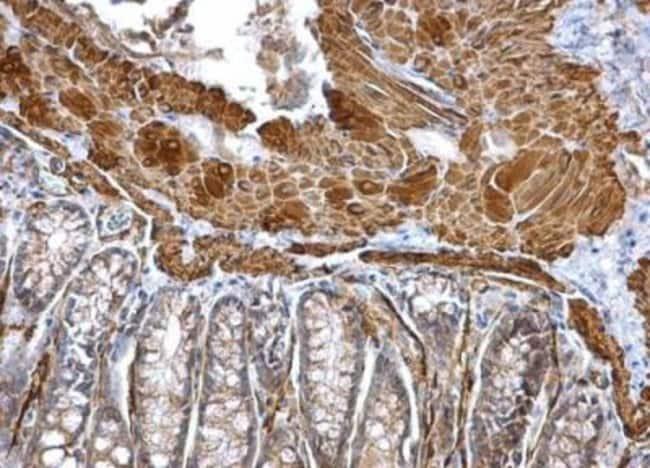 anti-Actin Alpha 2 Smooth Muscle, Polyclonal, Novus Biologicals 0.1mg;