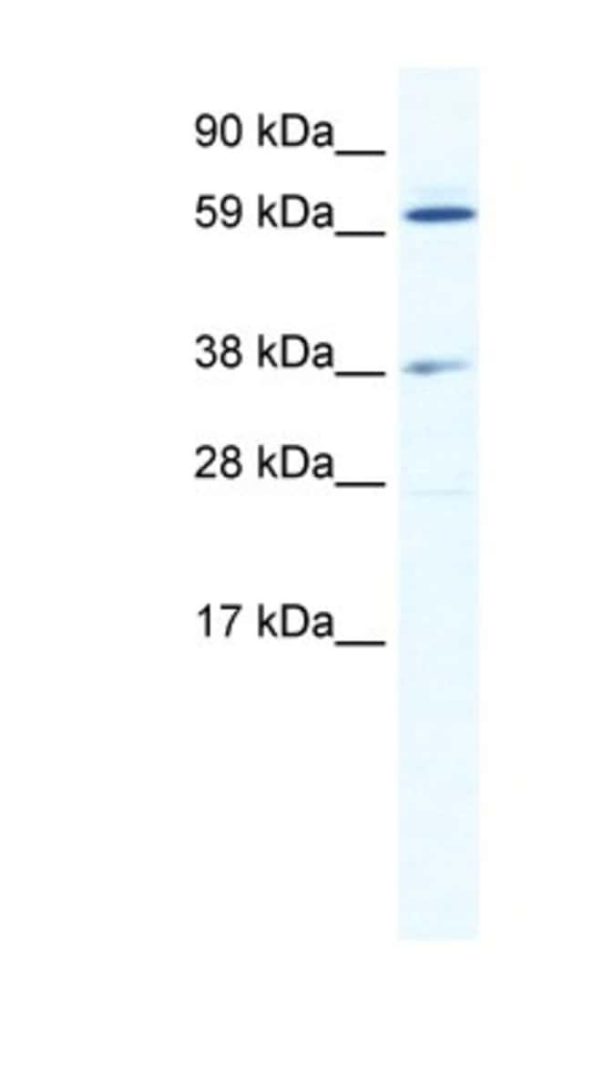 ALX3 Rabbit anti-Mouse, Polyclonal, Novus Biologicals 20µL; Unlabeled