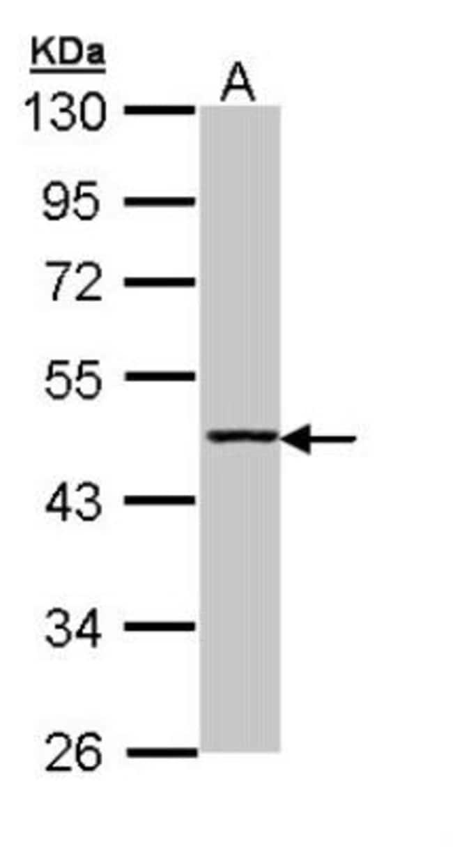 anti-Aminoacylase/ACY1, Polyclonal, Novus Biologicals 0.1mg; Unlabeled:Antibodies