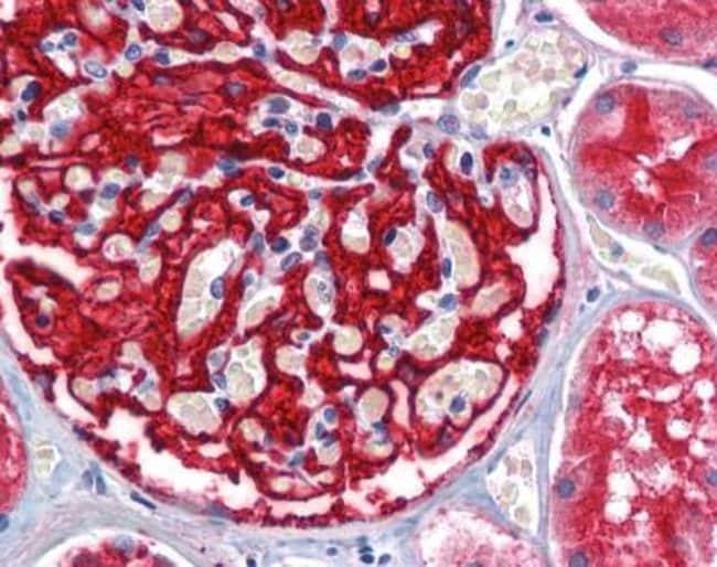 anti-Aminopeptidase A/ENPEP, Polyclonal, Novus Biologicals 0.1mg; Unlabeled:Life