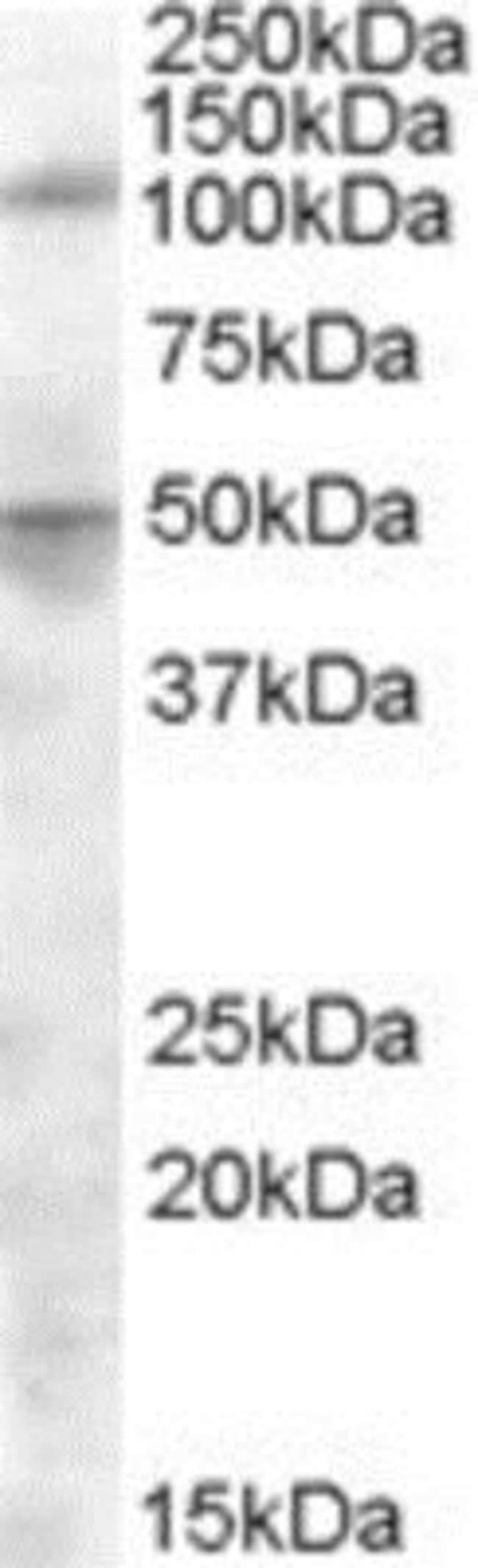 anti-Aminopeptidase LRAP/ERAP2, Polyclonal, Novus Biologicals 0.1mg; Unlabeled:Life