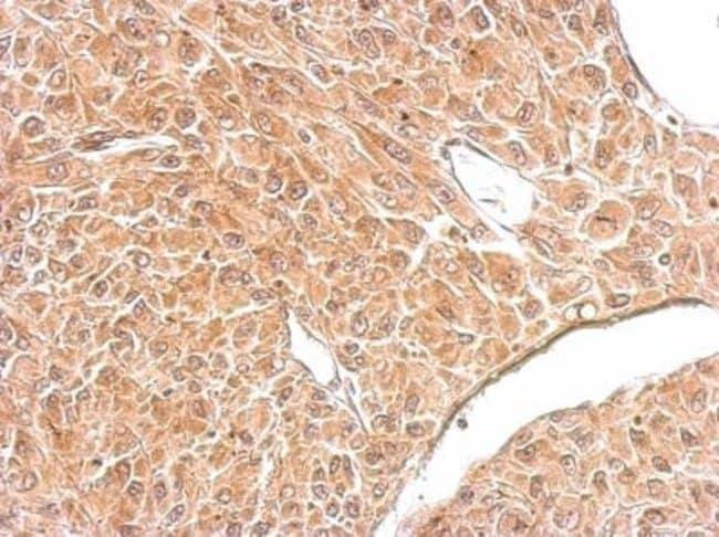 anti-Amphiphysin/AMPH, Polyclonal, Novus Biologicals 0.1mL; Unlabeled:Life
