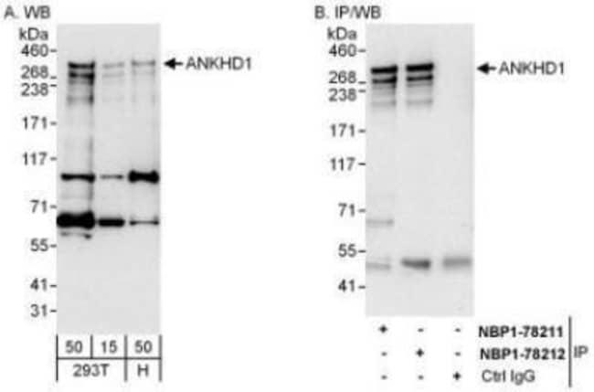 anti-ANKHD1, Polyclonal, Novus Biologicals 0.1mg; Unlabeled:Life Sciences