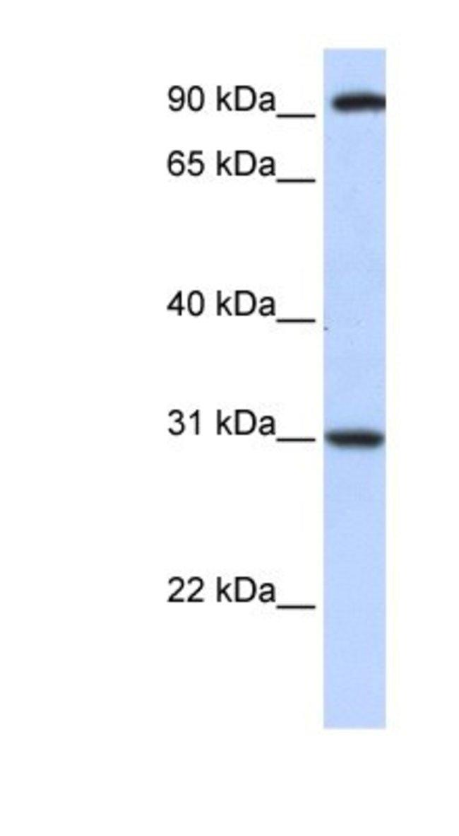 ANKRA2 Rabbit anti-Human, Polyclonal, Novus Biologicals 20µL; Unlabeled