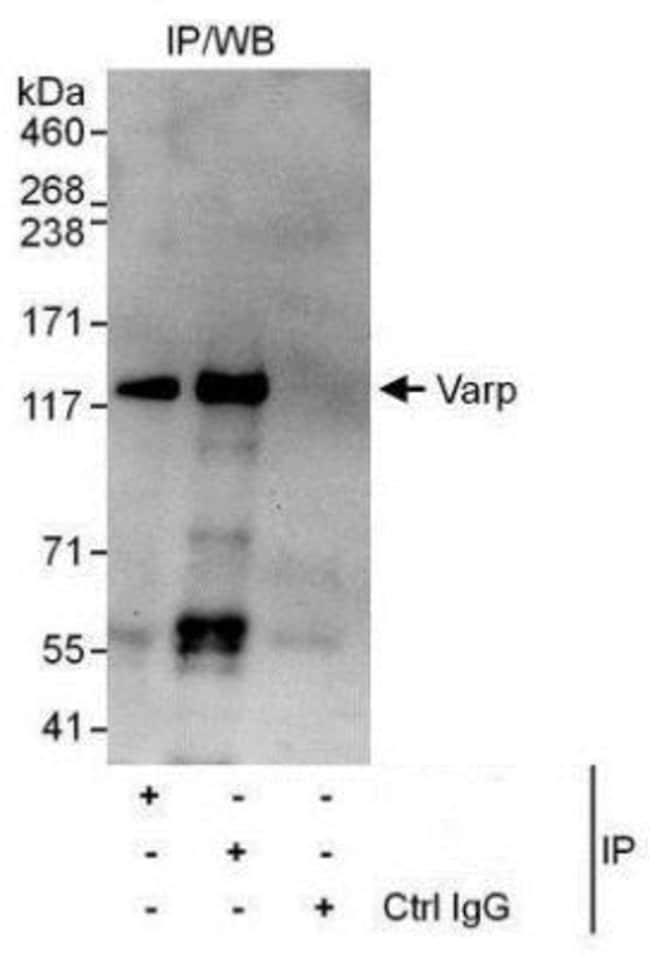 anti-ANKRD27, Polyclonal, Novus Biologicals 0.1mg; Unlabeled:Life Sciences