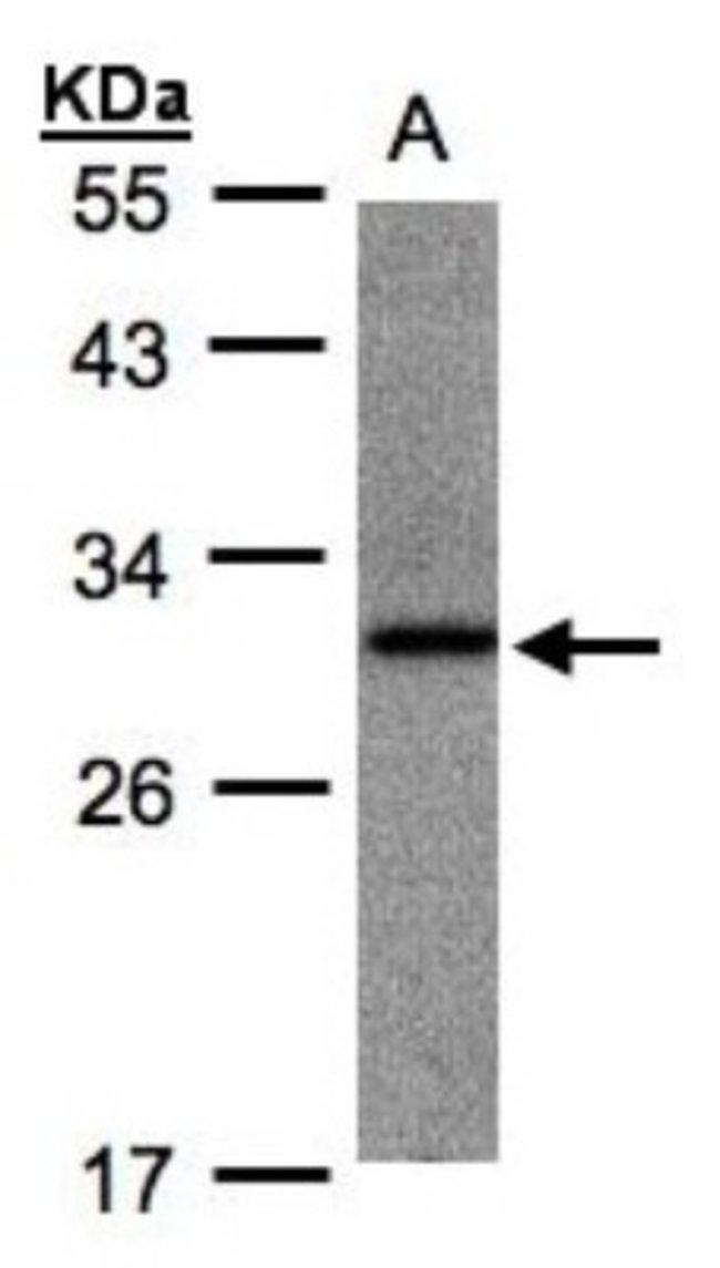 anti-ANKRD7, Polyclonal, Novus Biologicals 0.1mg; Unlabeled:Life Sciences
